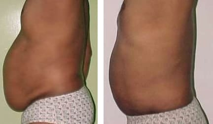 Liposuction-treatment