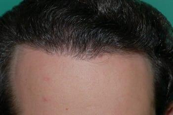 hair-transplant-dubai